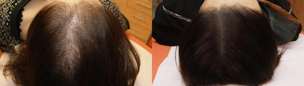 pratique de la tricopigmentation